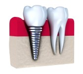 Dental Implants will Match Your Natural Teeth