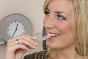 Choosing the Right Type of Dental Braces for You