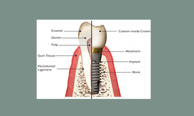 An Insight on Dental Implant Surgery