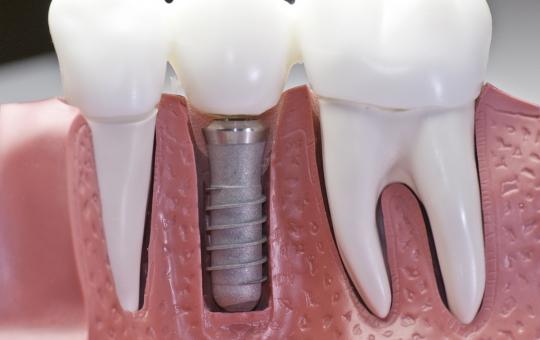 Aurora E&E Dentistry