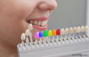 Maxwell Heights Dental